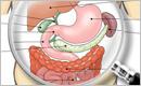 消化器外科医が扱う主な疾患とその治療法
