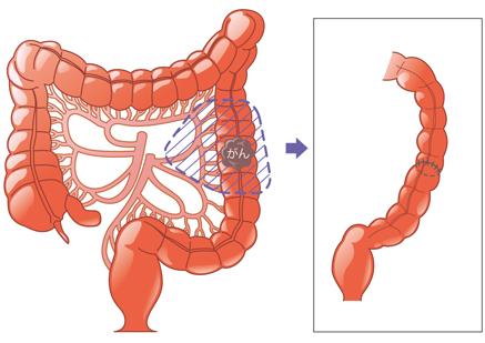 結腸 s 癌 状