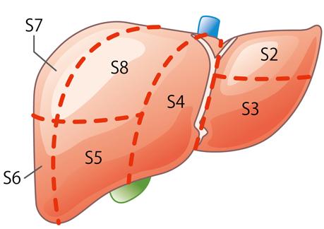 肝臓 図4b