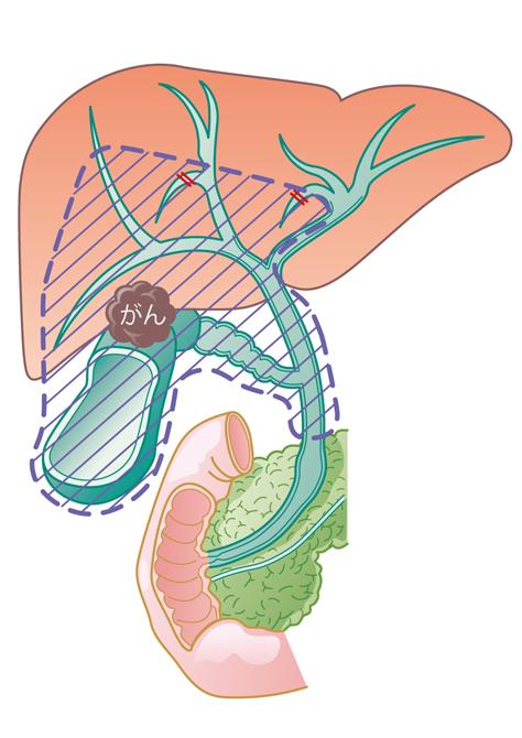 肝中央下切除術+胆管切除術