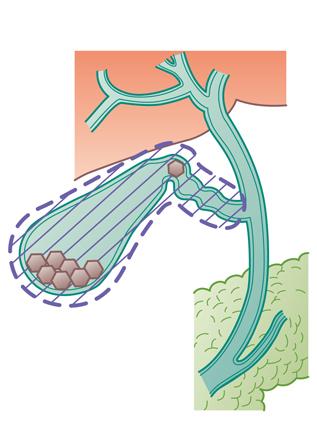 胆嚢摘出術