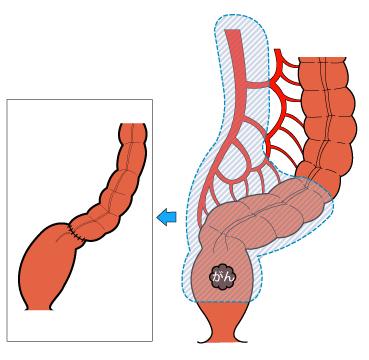 大腸の病気 - 日本消化器外科学...