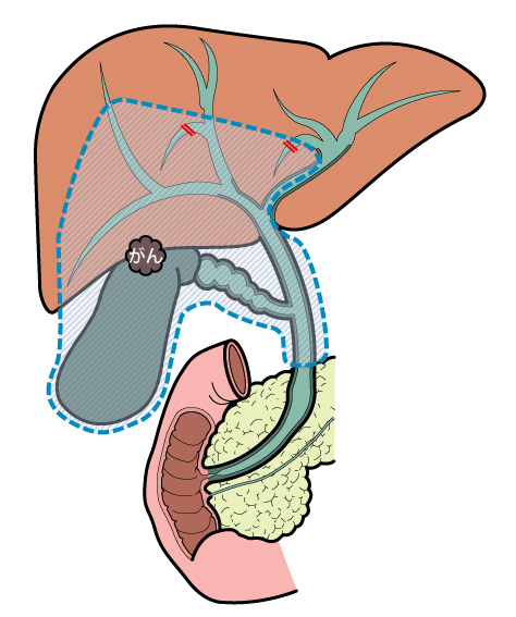 胆道の病気